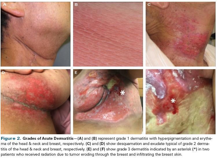 Grades of Acute Dermatitis